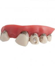 Valse tanden met diamant