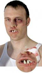 Boxer nep gebit