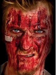 Nepbloed voor bloedkorsten
