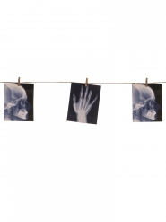 X-Ray slinger