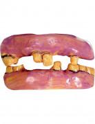 Vals gebit oude tanden